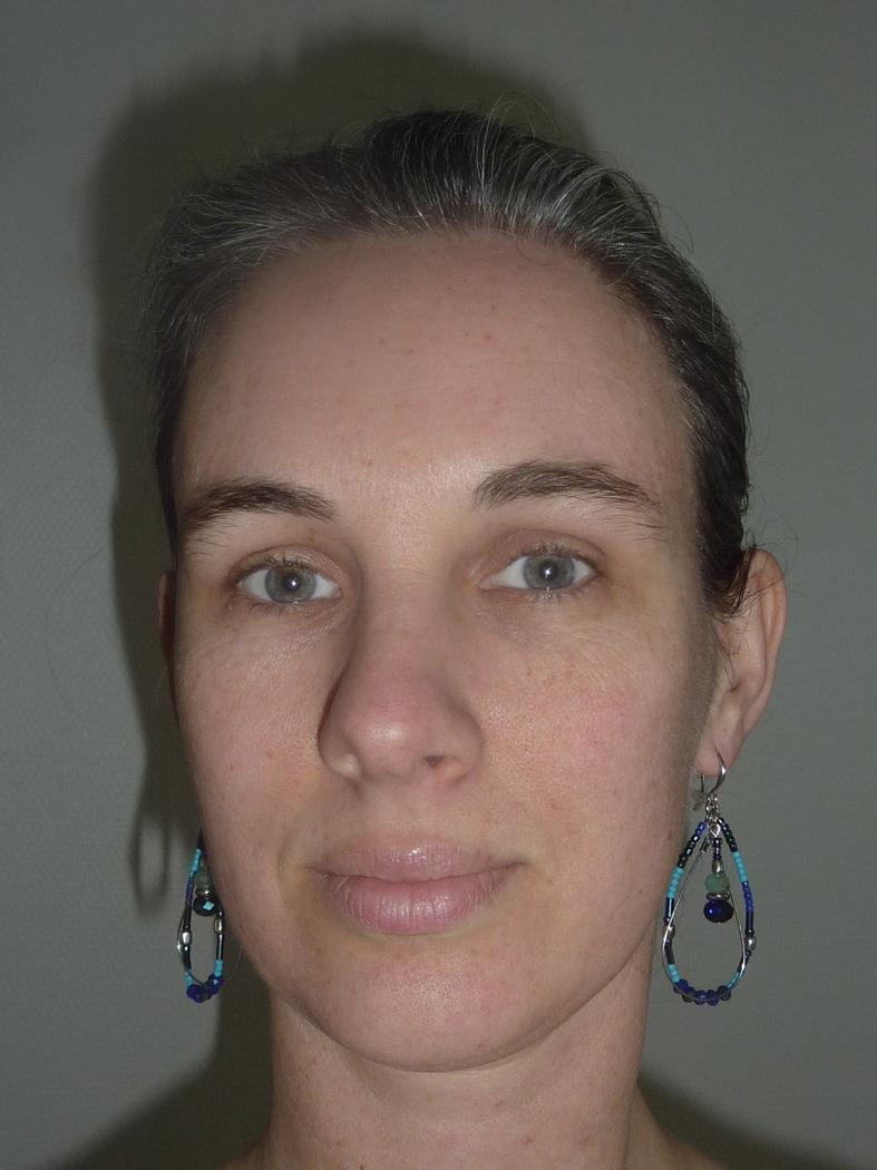 Anne Ruellan